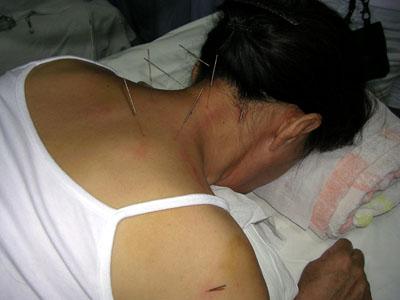 darmentzündung rückenschmerzen
